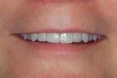 Porcelain Veneers in Williamsville, NY - Robert J Yetto DDS
