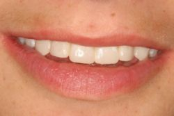 After Porcelain Veneers in Williamsville, NY - Robert J Yetto DDS
