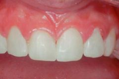 Crowns & Bridges in Williamsville, NY - Robert J Yetto DDS