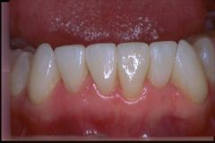 Porcelain Veneers Williamsville NY