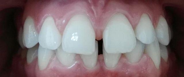 Teeth before treatment