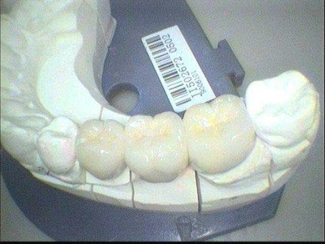 example teeth