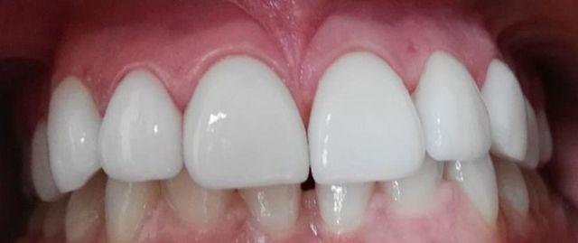 Completed Dental Work