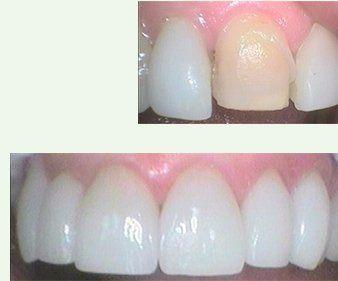reconstructive dental