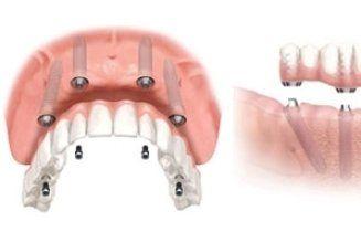 un'immagine di una protesi dentale