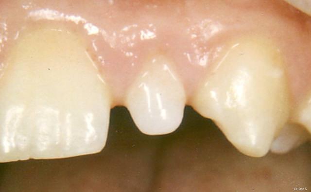 Zahn mit fehlender Schaufelform