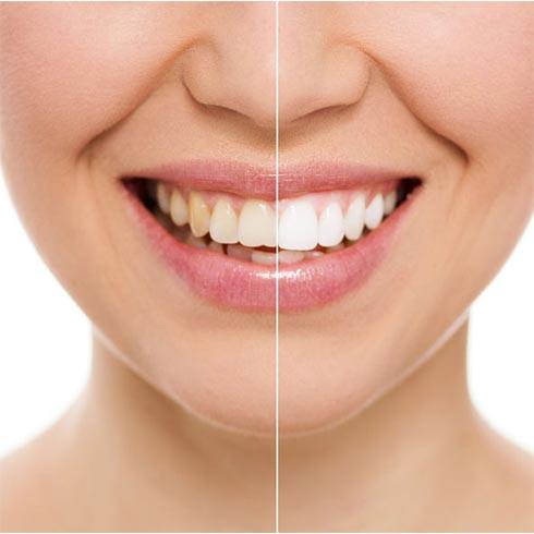 Best Cosmetic Dentist   Wilmington, DE   J  Michael Fay