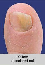 Laser Treatment for Toenail Fungus Houston (TX) and Bellaire (TX)