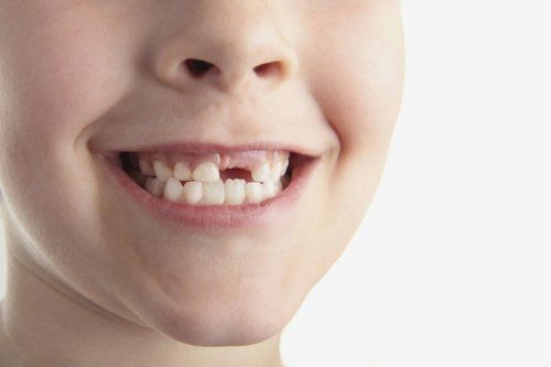 Child smiling, missing teeth