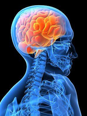 Neurological injury