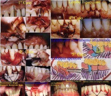 Gustavo Petti, Parodontologo, Cagliari, recessioni gengivali, parodontologia