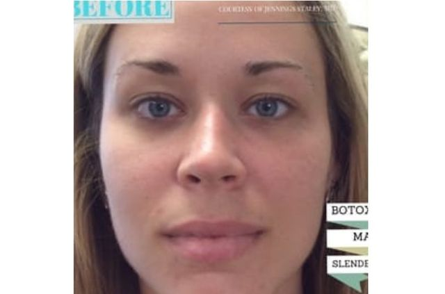 San Diego Masseter Injections - Botox Cosmetic Treatments CA