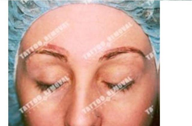 San Diego Laser Eyebrow Tattoo Removal | Skinny Beach