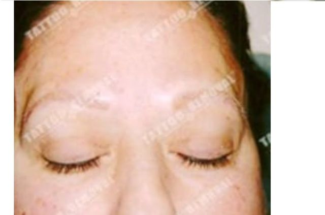San Diego Laser Eyebrow Tattoo Removal | Skinny Beach