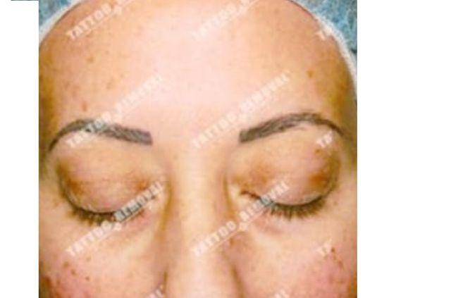 San Diego Laser Eyebrow Tattoo Removal Skinny Beach