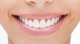 denti perfetti, denti senza carie, sorriso smagliante
