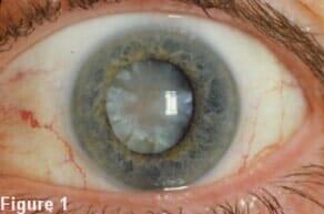 Optometry Equipment   Virginia Beach, VA   Howard Ossen A OD
