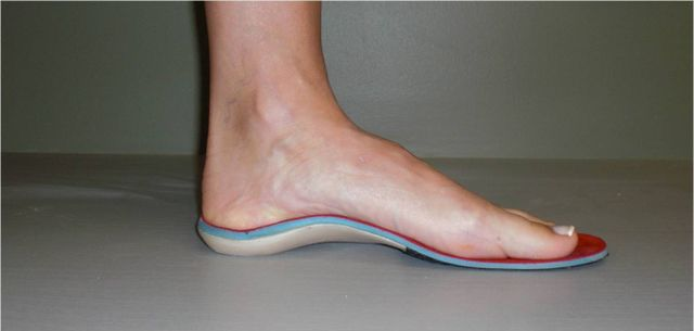 Custom Foot Orthotics in Mountain Home, AR
