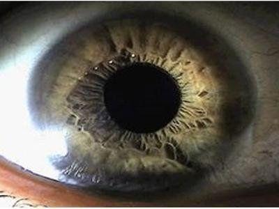 Analisi segmento cornea