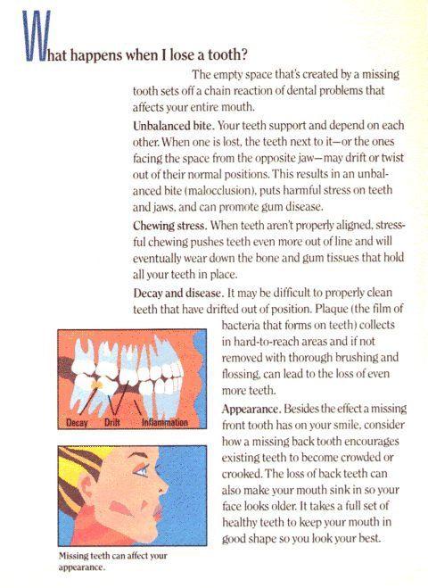 dental crowns Columbia, SC