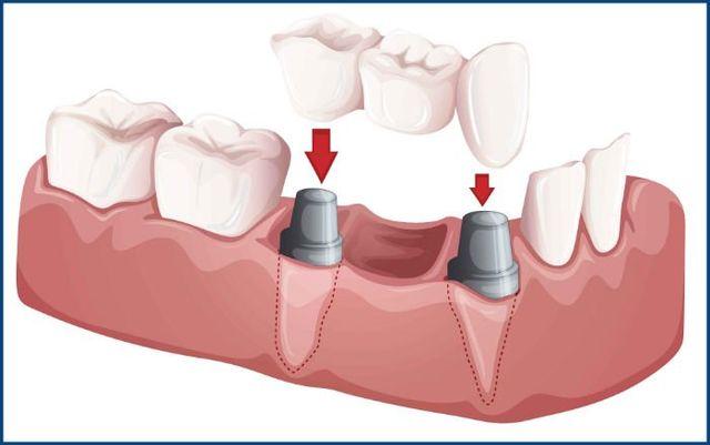 dental bridges austin