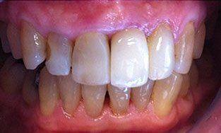 teeth smile