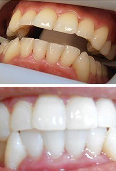smiling dentist teeth
