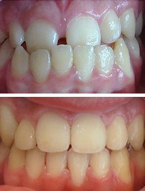 Before and after treatment by our cosmetic dentist in Prairiewood