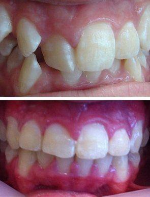 teeth dentist smile