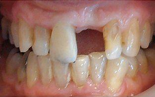 missing teeth smile