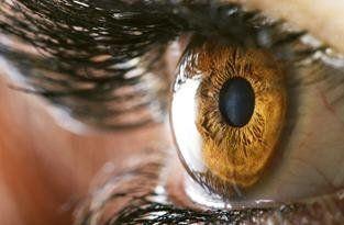 glaucoma Firenze