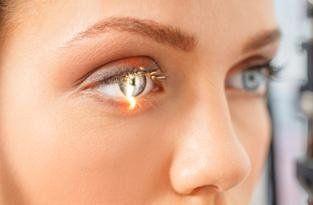 laser oculare