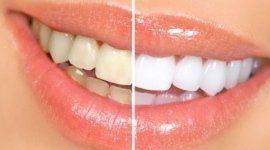 studio dentistico, igiene dentale, cure dentali