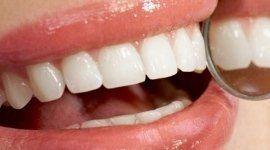 intarsi in ceramica, protesi dentarie, protesi fissa