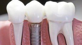 terapie odontoiatriche, terapia conservativa estetica, faccette