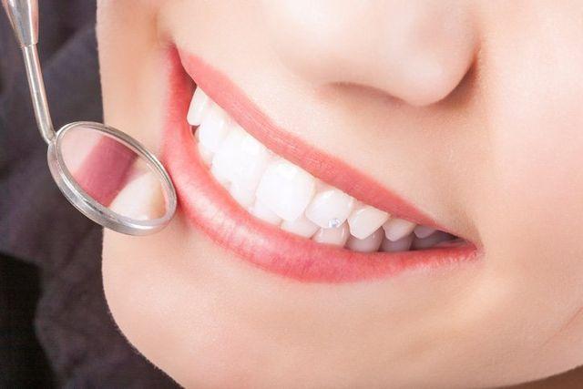 One of our custom orthodontics patients in Leeming