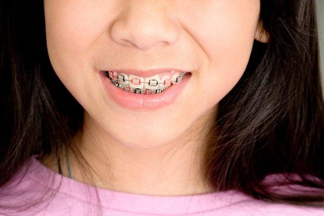 Girl with custom braces in Leeming