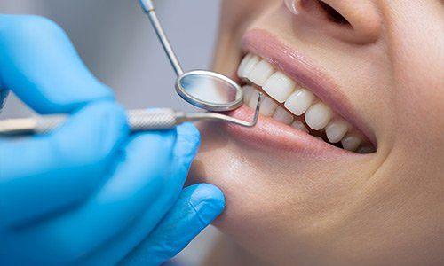 denti checkup ad Aosta