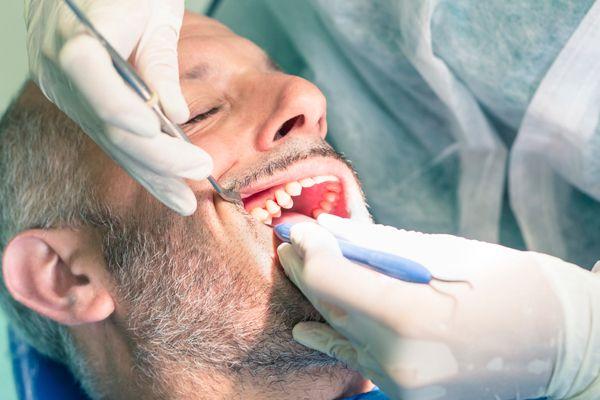 Man getting wisdom teeth removal in Caldwell