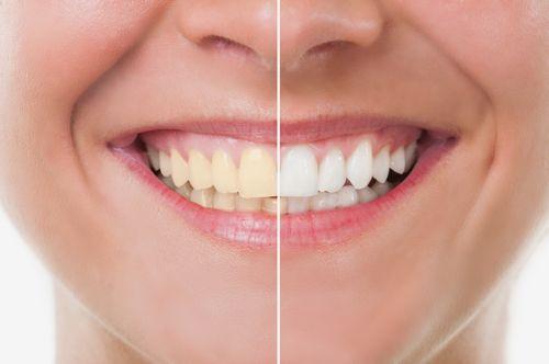 Teeth Whitening Caldwell, TX