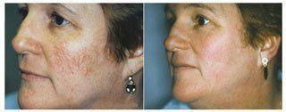 Skin Rejuvenation Tacoma, WA
