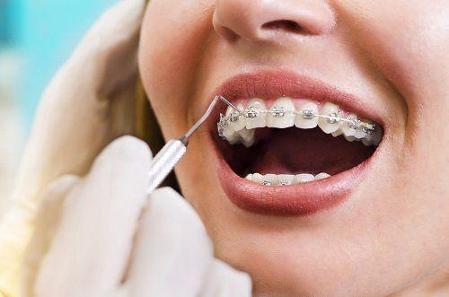 una donna con un apparecchio ortodontico da un dentista