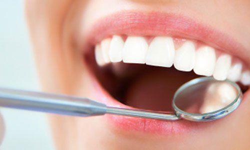 Dentista esaminando denti di un paziente