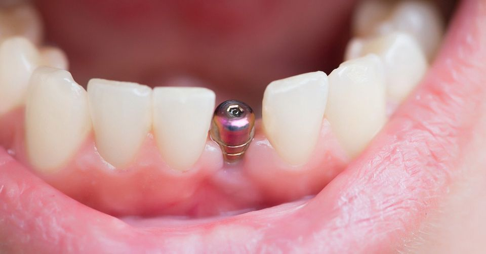 Are You Still Having Dental Implant Problems Years Later?