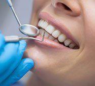 Primo piano sorriso di una paziente dal dentista
