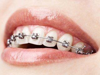 Primo piano sorriso e apparecchio odontoiatrico