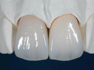 primo piano di un modellino di denti in gesso