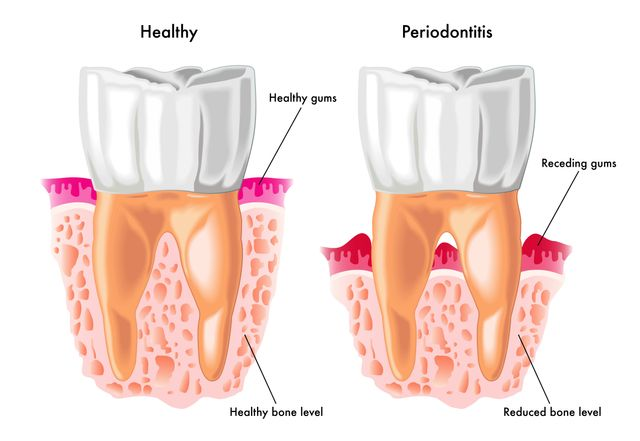 Periodontal Health