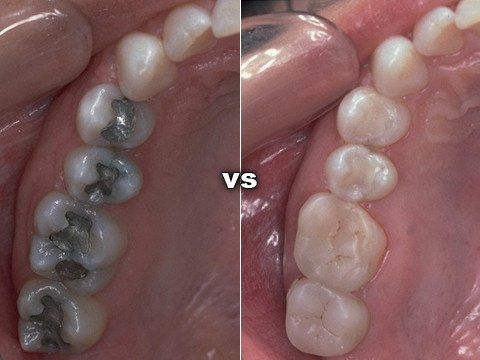 White Fillings at Marty Cloin DDS in Arlington Texas