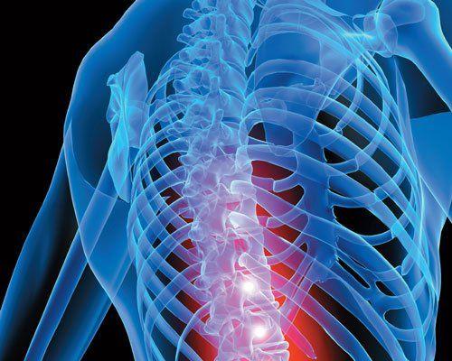 una radiografia al petto vista da dietro